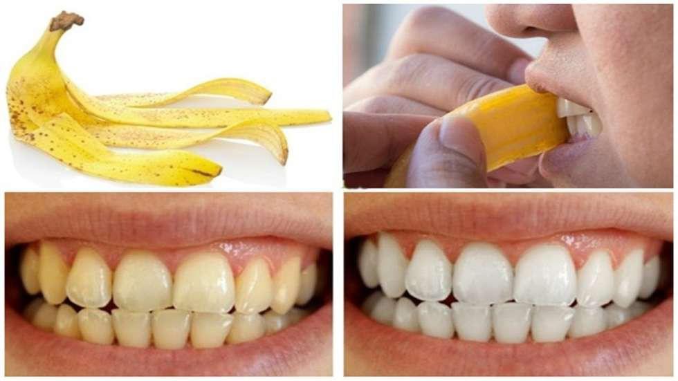 Mẹo làm trắng răng tại nhà 5