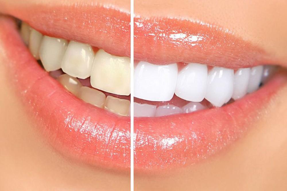 Mẹo làm trắng răng tại nhà 1