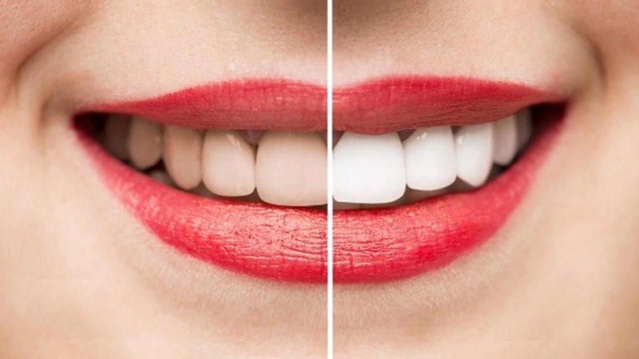 Mẹo làm trắng răng tại nhà 2